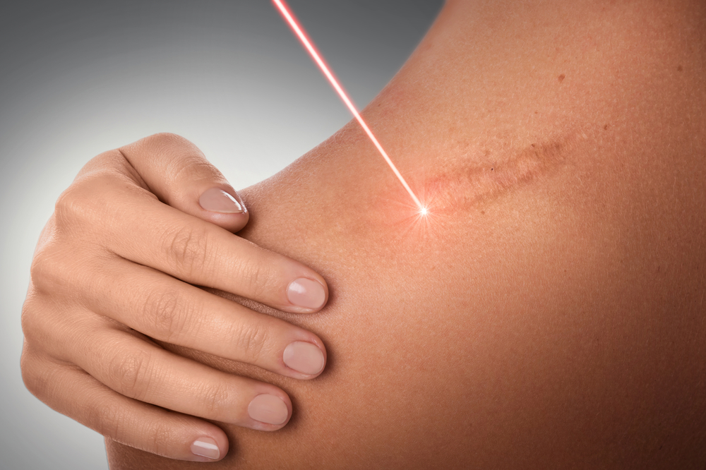 The Latest Advancements in Laser Skin Therapy (1)