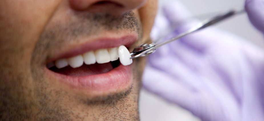 How to Get Ready for Dental Veneers
