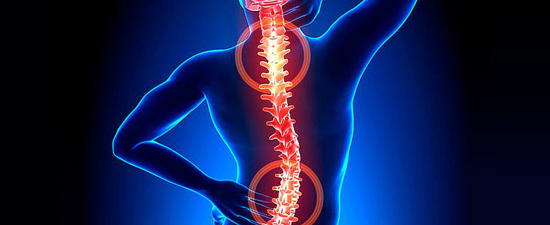 10 Non-Medical Remedies for Your Back Pain