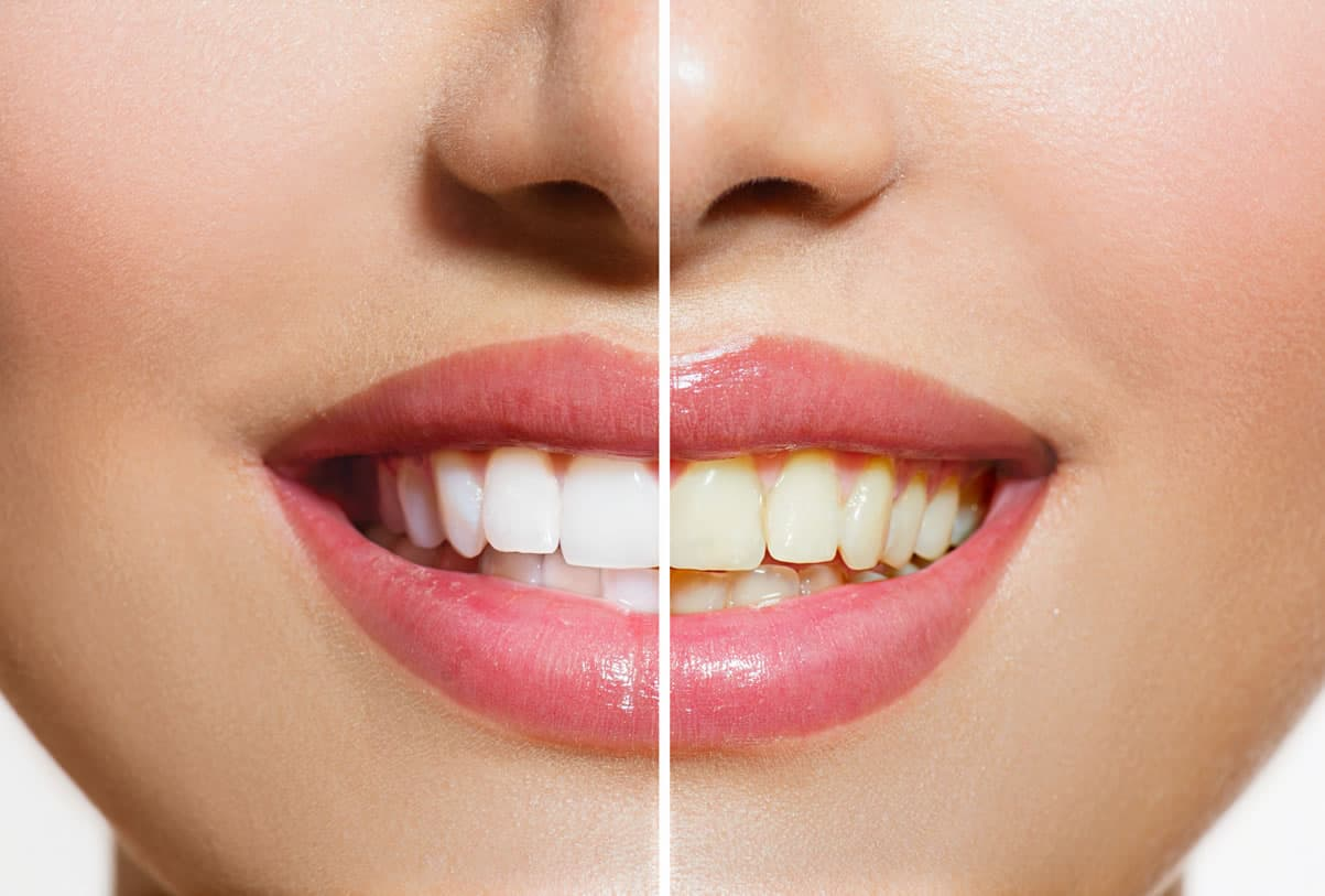 Good Oral Hygiene for Strong and Healthy Teeth
