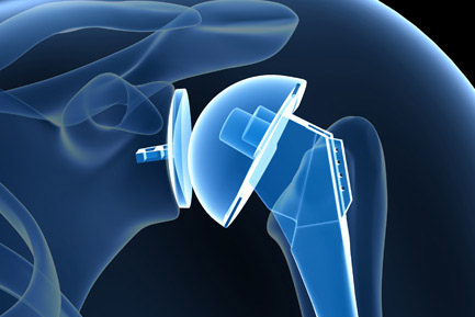 Guide of Joint Replacement Surgery